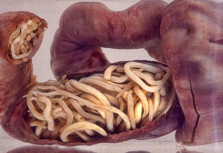 Ascaris worm infestation